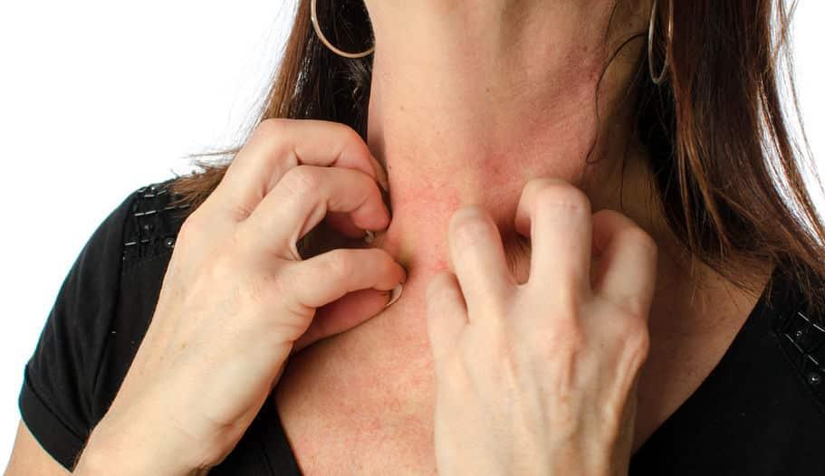 Hilft CBD gegen Neurodermitis und Hautkrankheiten?