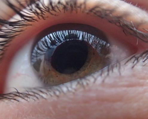 Cannabidiol (CBD) bei Glaukom