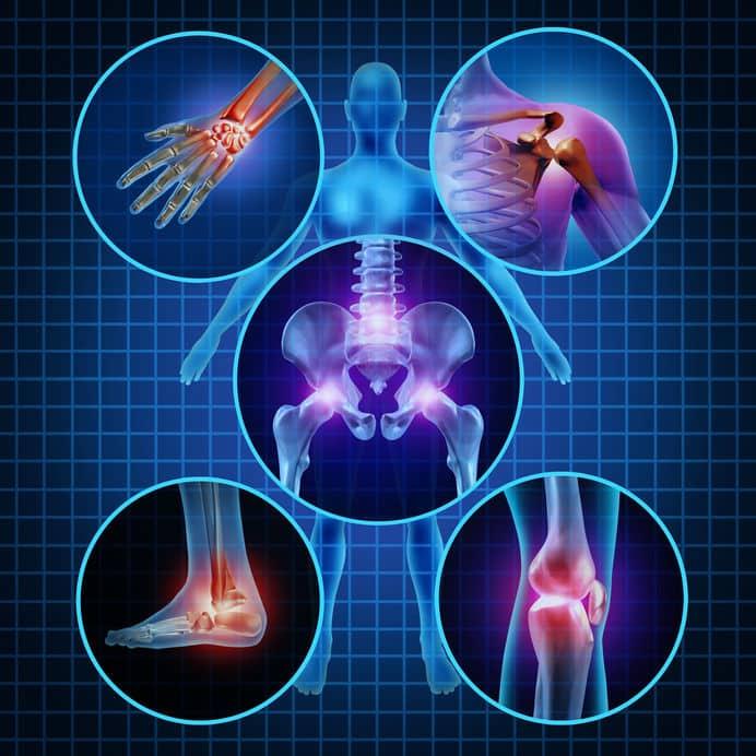 Arthritis Auswirkungen auf Gelenke