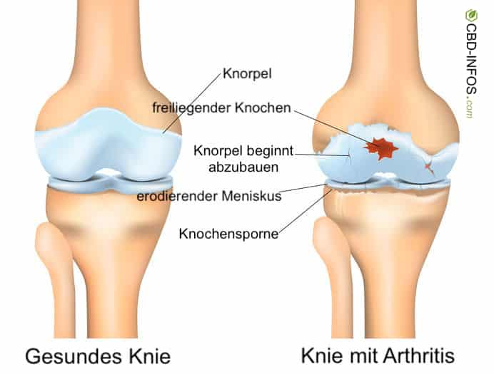 Knie mit Arthrose