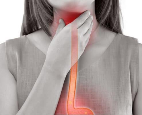 CBD gegen Halsschmerzen